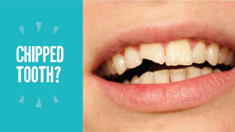 Chipped Tooth?  Fulp Can Help!