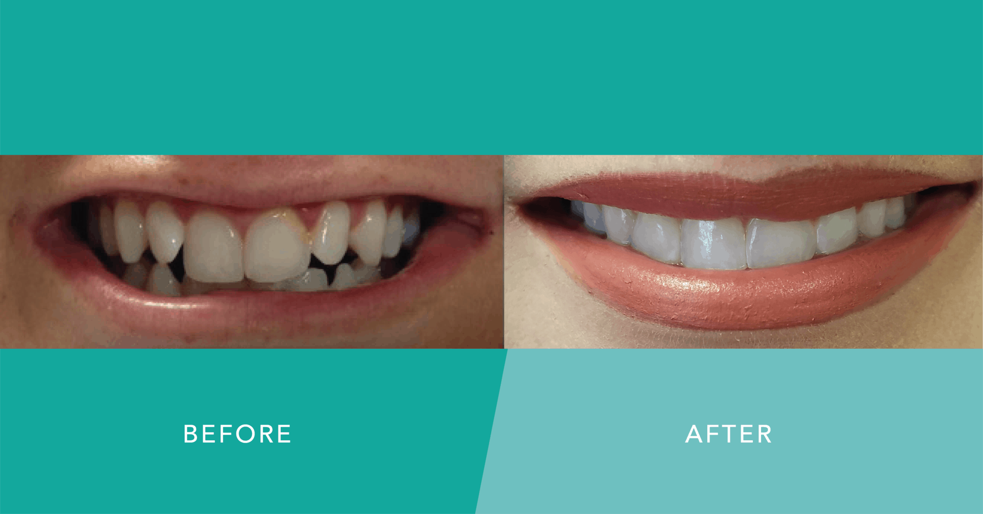 six month smiles more in cosmetic dentistry