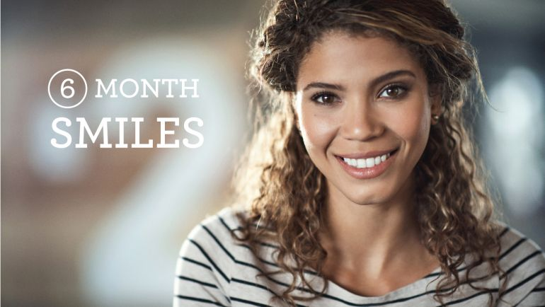 Six Month Smiles – See the Difference