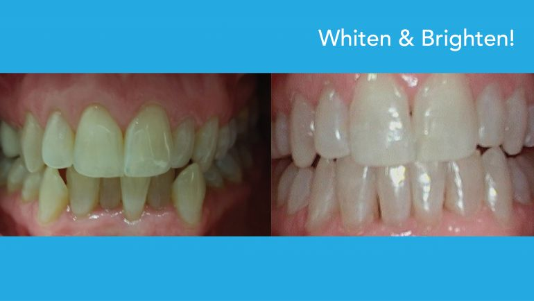 Want a Whiter, Brighter Smile? We can help!