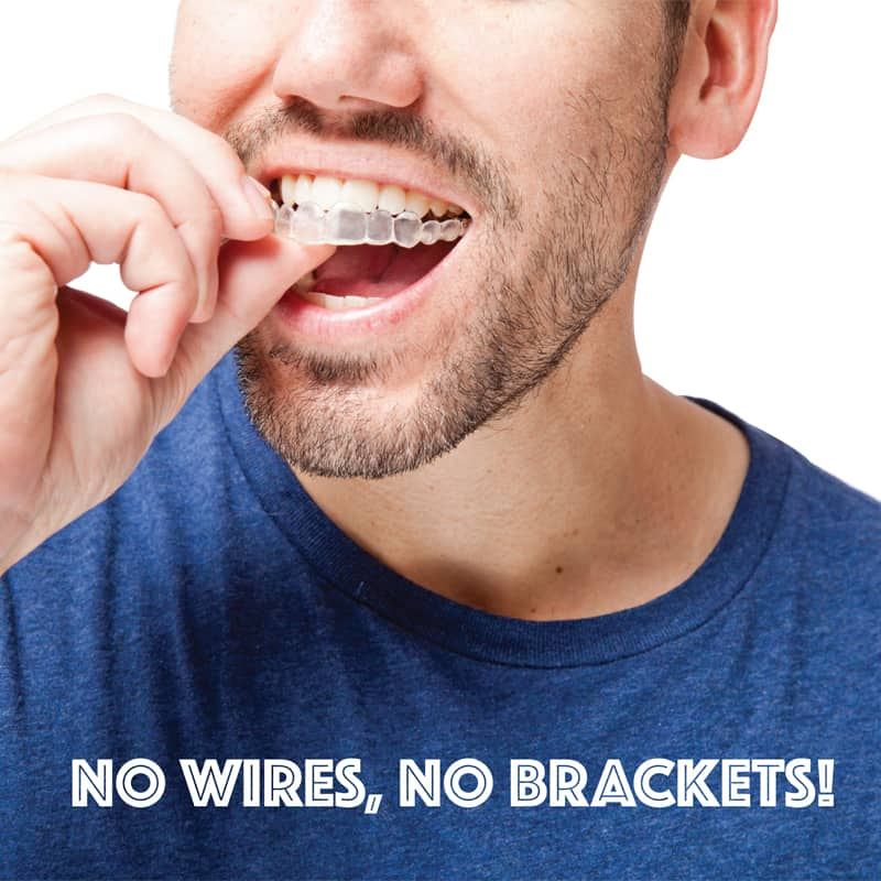 Considering Invisalign®? You Should!