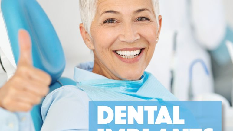 Implants: 3 Reasons to Consider Dental Implants